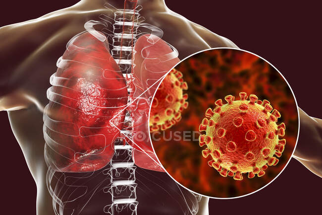 Coronavirus causant une pneumonie, illustration conceptuelle par ordinateur — Photo de stock
