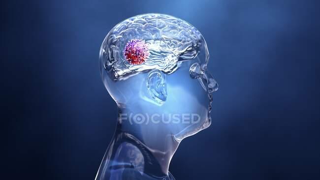 Cancro do cérebro, ilustração conceitual do computador — Fotografia de Stock