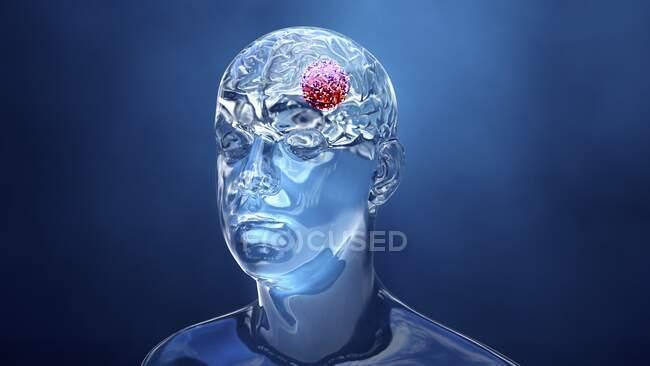 Cáncer cerebral, ilustración conceptual por ordenador - foto de stock