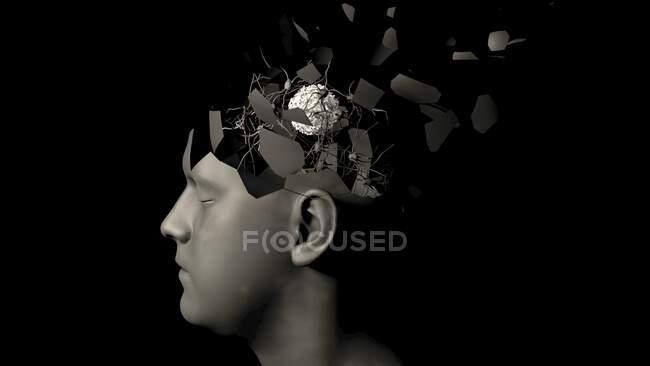 Cancer du cerveau, illustration conceptuelle par ordinateur — Photo de stock