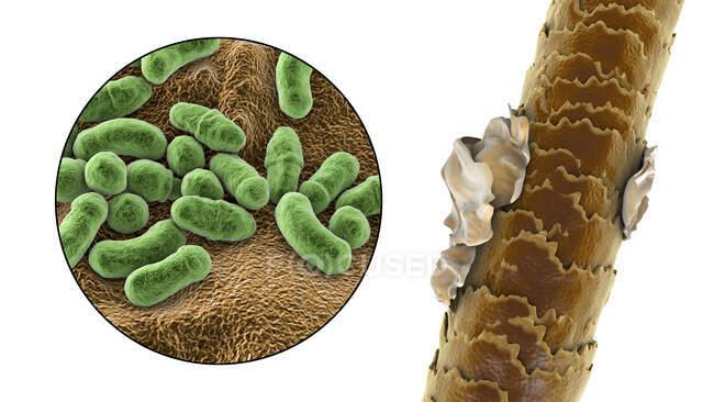 Ilustración por computadora que muestra el cabello humano con caspa y vista de cerca de hongos microscópicos Malassezia furfur asociado con la dermatitis seborreica y la formación de caspa - foto de stock