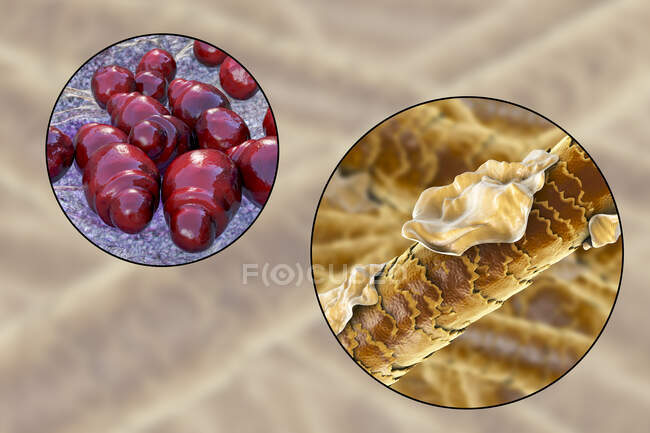 Computer illustration showing human hair with dandruff and close-up view of microscopic fungi Malassezia furfur associated with seborrhoeic dermatitis and dandruff formation — Stock Photo