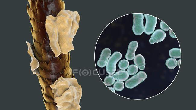 Ilustração do computador mostrando cabelo humano com caspa e visão de perto de fungos microscópicos Malassezia furfur associado com dermatite seborreica e formação de caspa — Fotografia de Stock