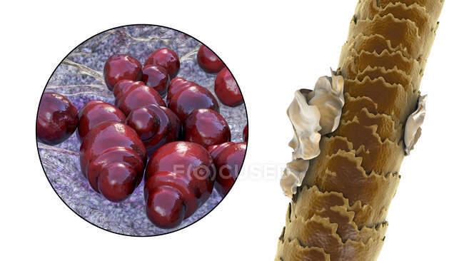 Компьютерная иллюстрация, показывающая человеческие волосы с перхоти и крупным планом микроскопических грибов Malassezia furfur, связанных с себорейным дерматитом и перхоти образования — стоковое фото
