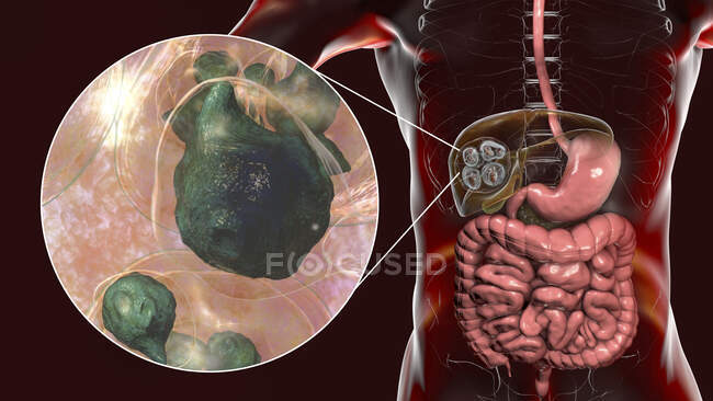 Lebererkrankung durch Larven des parasitären Bandwurms Echinococcus multilocularis, Computerillustration — Stockfoto
