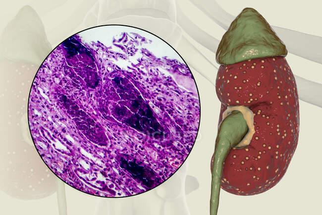 Pyélonéphrite aiguë, illustration par ordinateur et micrographie photonique — Photo de stock