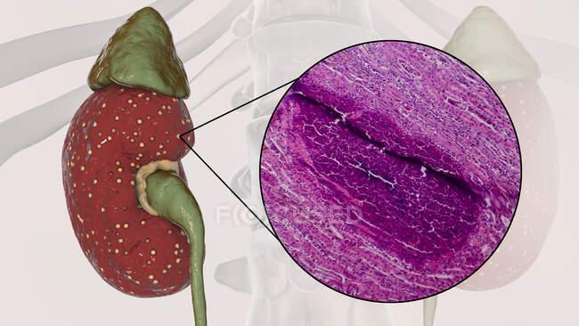 Pielonefrite aguda, ilustração computacional e micrografia de luz — Fotografia de Stock