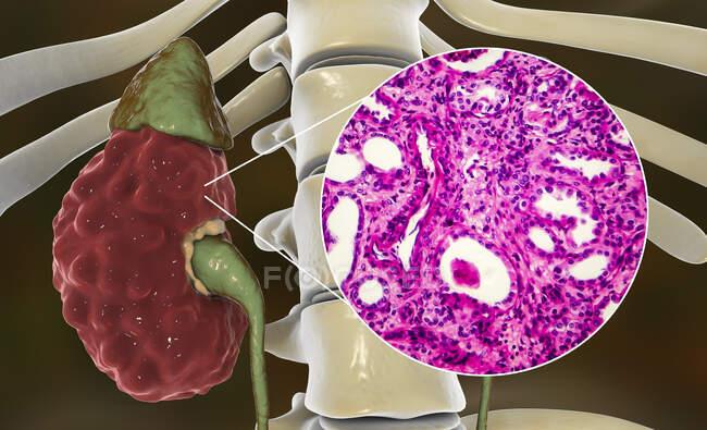 Pyélonéphrite chronique, illustration par ordinateur et micrographie photonique — Photo de stock