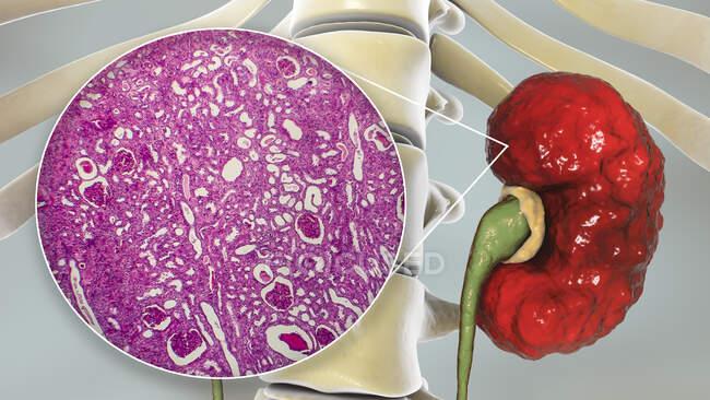Chronic pyelonephritis, computer illustration and light micrograph — Stock Photo