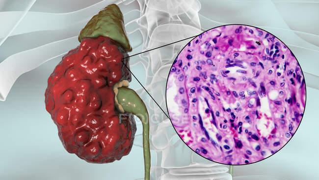 Pielonefritis crónica, ilustración por ordenador y micrografía ligera - foto de stock