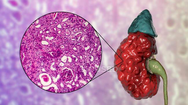 Pielonefrite cronica, illustrazione al computer e micrografo leggero — Foto stock