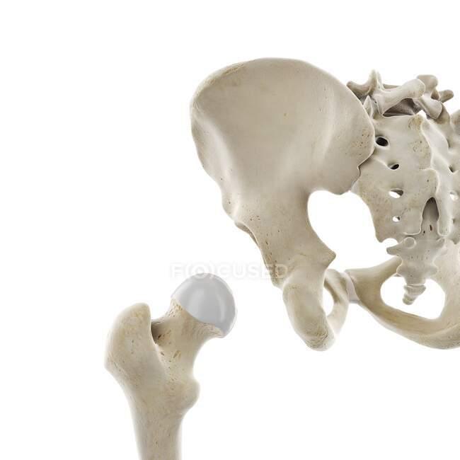 Articulación de cadera, ilustración por computadora - foto de stock