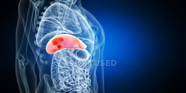 Tumores hepáticos, ilustración por ordenador - foto de stock