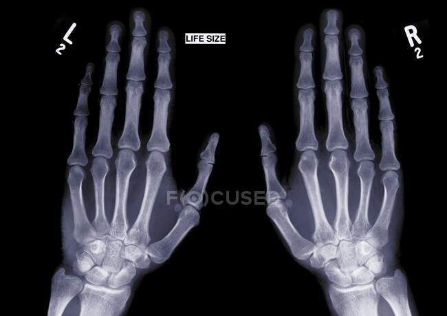 Due mani tese, raggi X.. — Foto stock