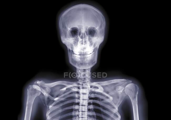 Skull and shoulders smiling, X-ray. — Stock Photo