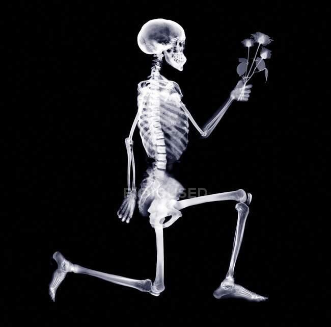 Skelett, Röntgenbild. — Stockfoto