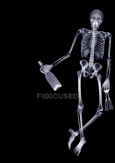 Esqueleto sosteniendo champán y dos copas, rayos X. - foto de stock