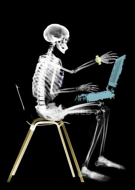 Esqueleto humano sentado con computadora portátil, rayos X de color. - foto de stock