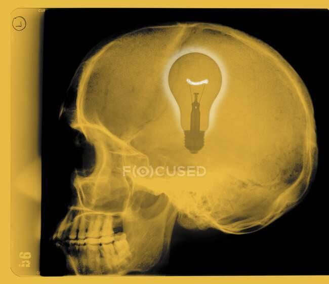 Human skull with light bulb, coloured X-ray. — Stock Photo