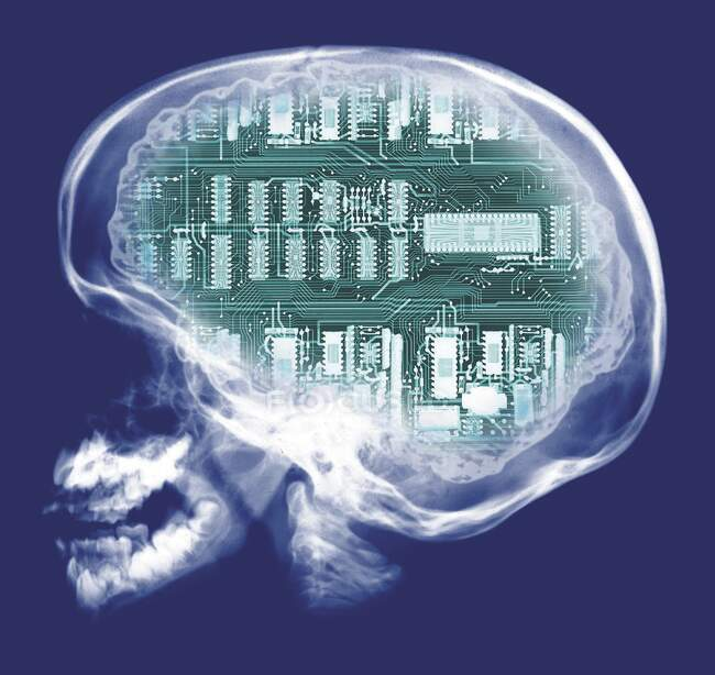 Human skull and computer circuit board, coloured X-ray. — Stock Photo
