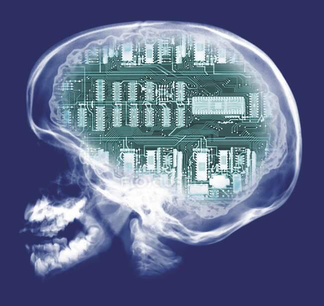 Calavera humana y placa de circuito informático, rayos X de color. - foto de stock