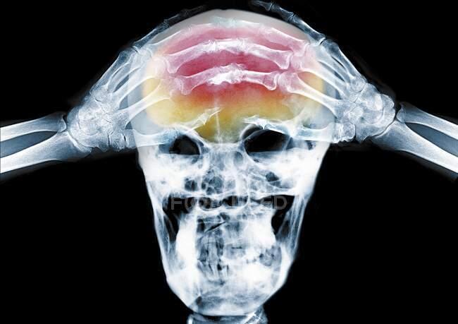 Persona con las manos en la cabeza, dolor de cabeza, rayos X de color. - foto de stock