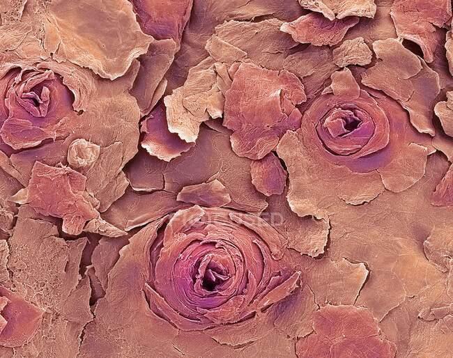 Людська губа. Кольоровий скануючий електронний мікрограф (SEM) людської губи, показує поту залозу отвори на сухішій зовнішній поверхні губ. Ці отвори (пори) вивільняють піт на поверхню шкіри. — стокове фото