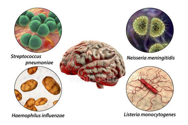 Причини бактеріального менінгіту, комп'ютерна ілюстрація. Neisseria meningitidis, Streptococcus pneumoniae, Haemophilus influenzae та Listeria monocytogenes - основні причинно-наслідкові агенти бактеріального менінгіту. Помічене зображення. — стокове фото