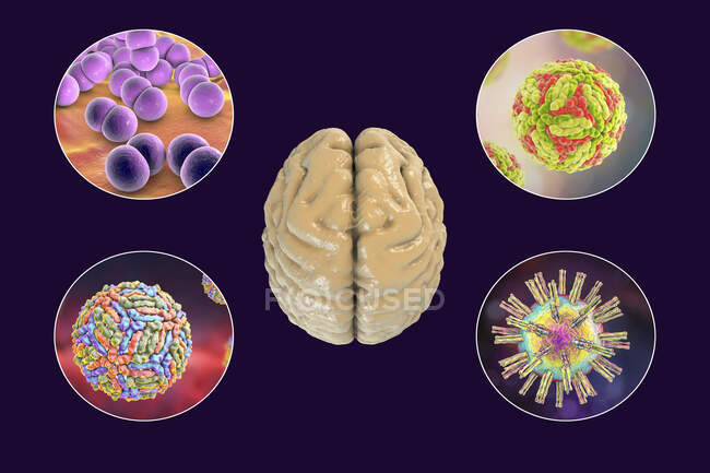 Brain infections. Computer illustration of microorganisms that cause encephalitis and meningitis — Stock Photo