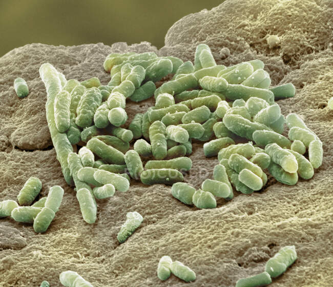 Micrografía electrónica de barrido coloreada de la bacteria Gram-negativa Escherichia coli, en forma de varilla, comúnmente conocida como E. coli - foto de stock