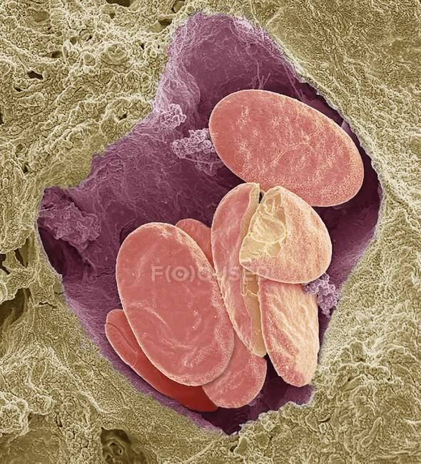 Glóbulos rojos de serpiente. Micrografía electrónica de barrido de color (SEM) de los glóbulos rojos (eritrocitos, rojos) enteros y fracturados en un pequeño vaso sanguíneo de una serpiente - foto de stock