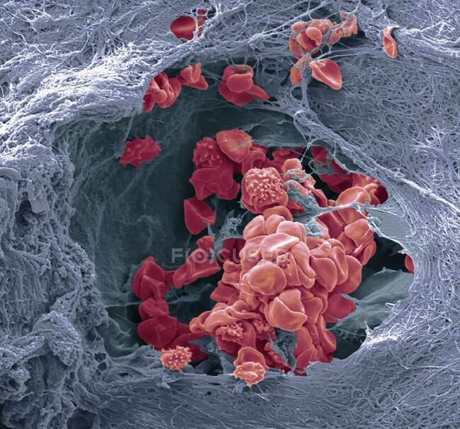 Vaso sanguíneo de la piel. Micrografía electrónica de barrido de color (SEM) de un vaso sanguíneo (arteriola) en la dermis de la piel. En el vaso sanguíneo hay glóbulos rojos (eritrocitos, rojos) que transportan oxígeno alrededor del cuerpo. - foto de stock