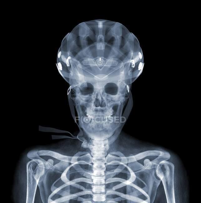 Casco y jinete de bicicleta, rayos X - foto de stock