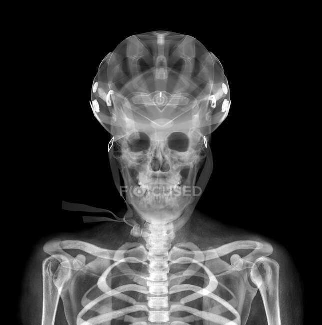 Schädel und Helm, Röntgen. — Stockfoto