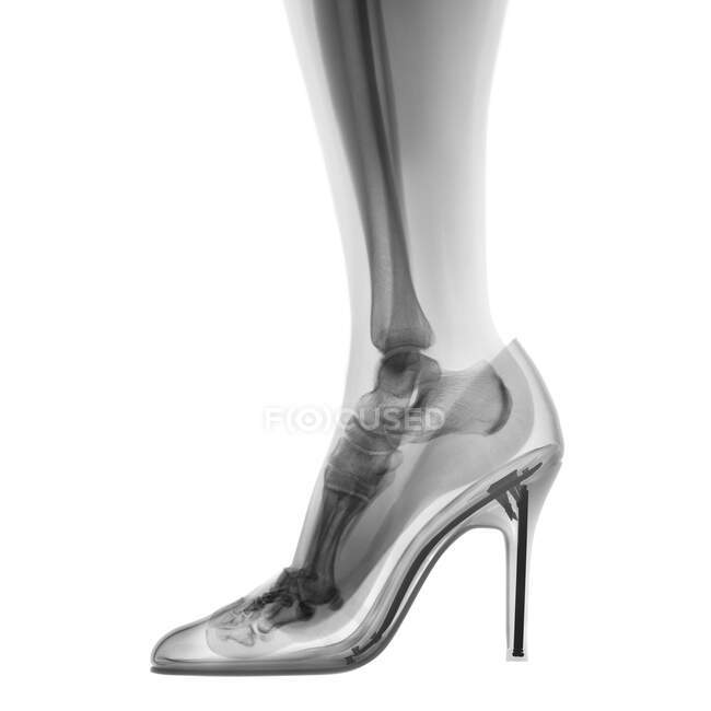 Skeleton foot in high heel shoe, X-ray. — Stock Photo