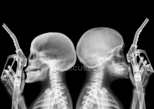 Petrol gasoline pumps and skeletons, X-ray. — Foto stock