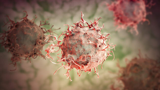 Skin cancer cell, computer illustration. — Stock Photo