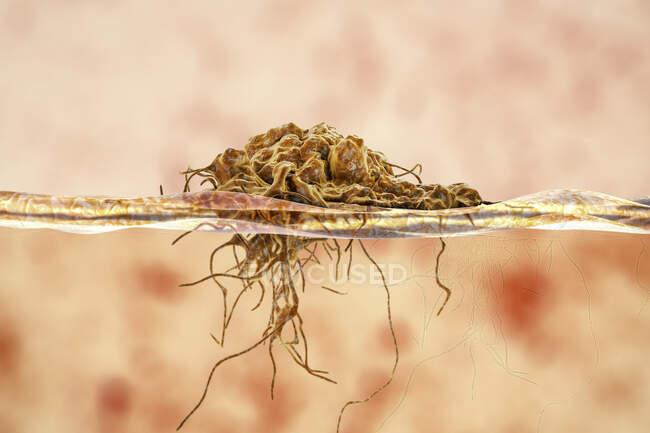Invasione di cancro nei tessuti circostanti, illustrazione concettuale del computer. — Foto stock