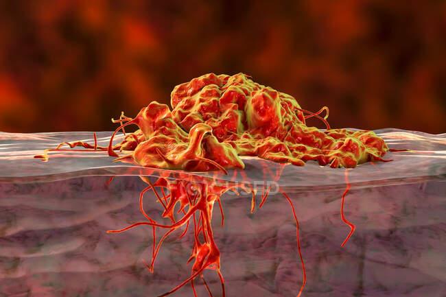 Invasión del cáncer en los tejidos circundantes, ilustración conceptual por computadora. - foto de stock