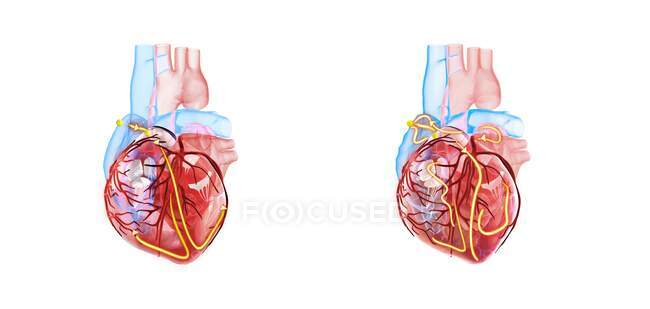 Human heart and its electrical system, 3d illustration. The yellow lines demonstrate the electrical (conduction) system of the heart. The heart at right shows an irregular heartbeat (arrhythmia) and atrial fibrillation. — Stock Photo