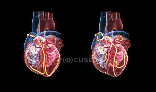 Corazón humano y su sistema eléctrico, ilustración 3d. Las líneas amarillas demuestran el sistema eléctrico (de conducción) del corazón. El corazón a la derecha muestra latidos cardíacos irregulares (arritmia) y fibrilación auricular. - foto de stock