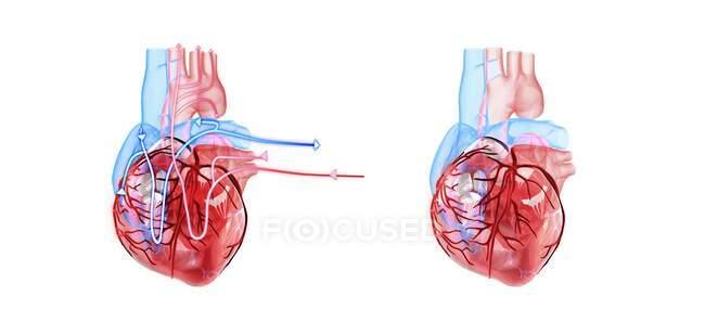 Ilustraciones 3d del corazón humano con líneas que demuestran el flujo sanguíneo. - foto de stock