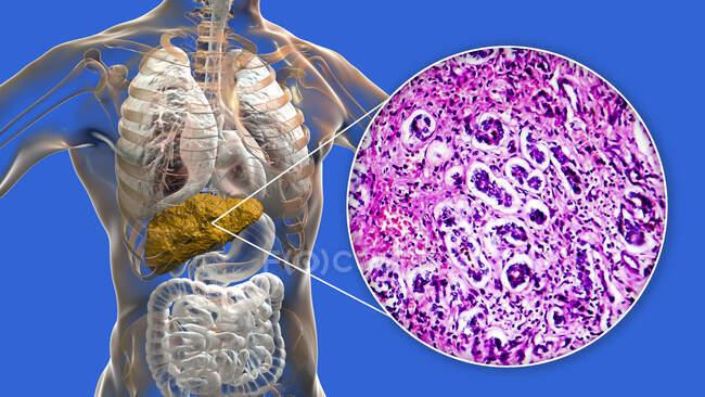 Cirrosis hepática. Ilustración por computadora y micrografía de luz de una sección a través de un hígado humano con cirrosis biliar primaria. La cirrosis es una enfermedad en la que las bandas de fibrosis (cicatrización interna) rompen la estructura interna del hígado. - foto de stock
