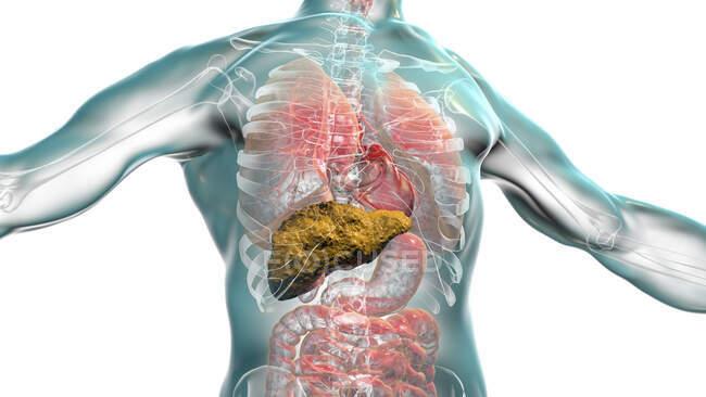 Foie avec cirrhose, illustration informatique. La cirrhose est une conséquence d'une maladie chronique du foie caractérisée par la fibrose et la cicatrisation des tissus — Photo de stock