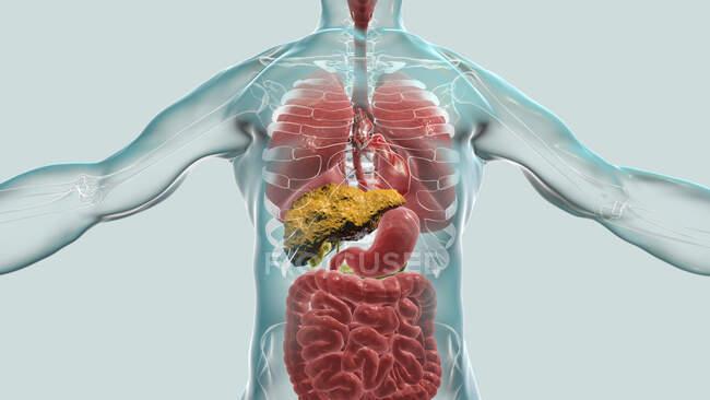 Hígado con cirrosis, ilustración por computadora. La cirrosis es una consecuencia de la enfermedad hepática crónica caracterizada por fibrosis y cicatrización del tejido - foto de stock