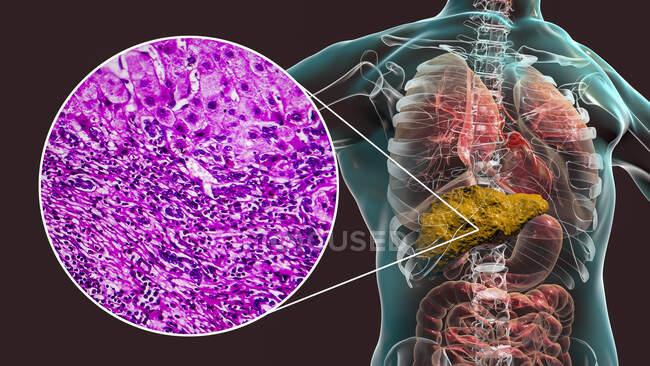 Cirrosis hepática. Ilustración por computadora y micrografía ligera de una sección a través de un hígado humano con cirrosis, mostrando fibrosis y falta de anatomía funcional del hígado. - foto de stock