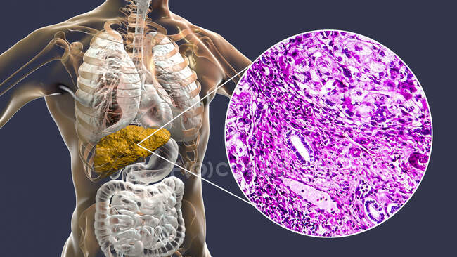 Liver cirrhosis. Computer illustration and light micrograph of a section through a human liver with cirrhosis, showing fibrosis and lack of a functional liver anatomy. — Stock Photo