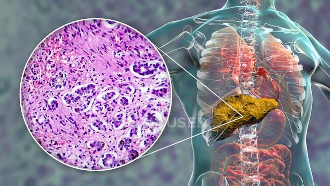 Cirrosis hepática. Ilustración por ordenador y micrografía ligera de una sección a través de un hígado humano con nódulos hepatocelulares asociados a cirrosis. - foto de stock