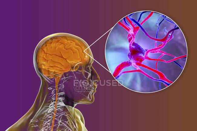 Cerebro humano con vista cercana de las neuronas, ilustración por ordenador. - foto de stock