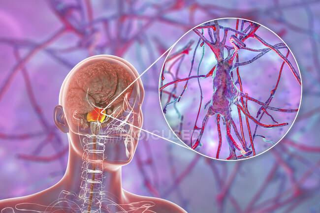 Cerebro humano con puntas y neuronas resaltadas, ilustración. Cerebro humano con puntos destacados Varolii y vista de cerca de las neuronas piramidales (células nerviosas) ubicadas en puntos - foto de stock